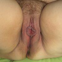 fat pussy fleshy vulva