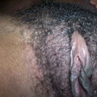 hairy african vulva