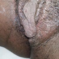 Black Fleshy Labia from Sudan