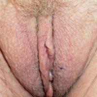 australian-matured-vulva-close-up