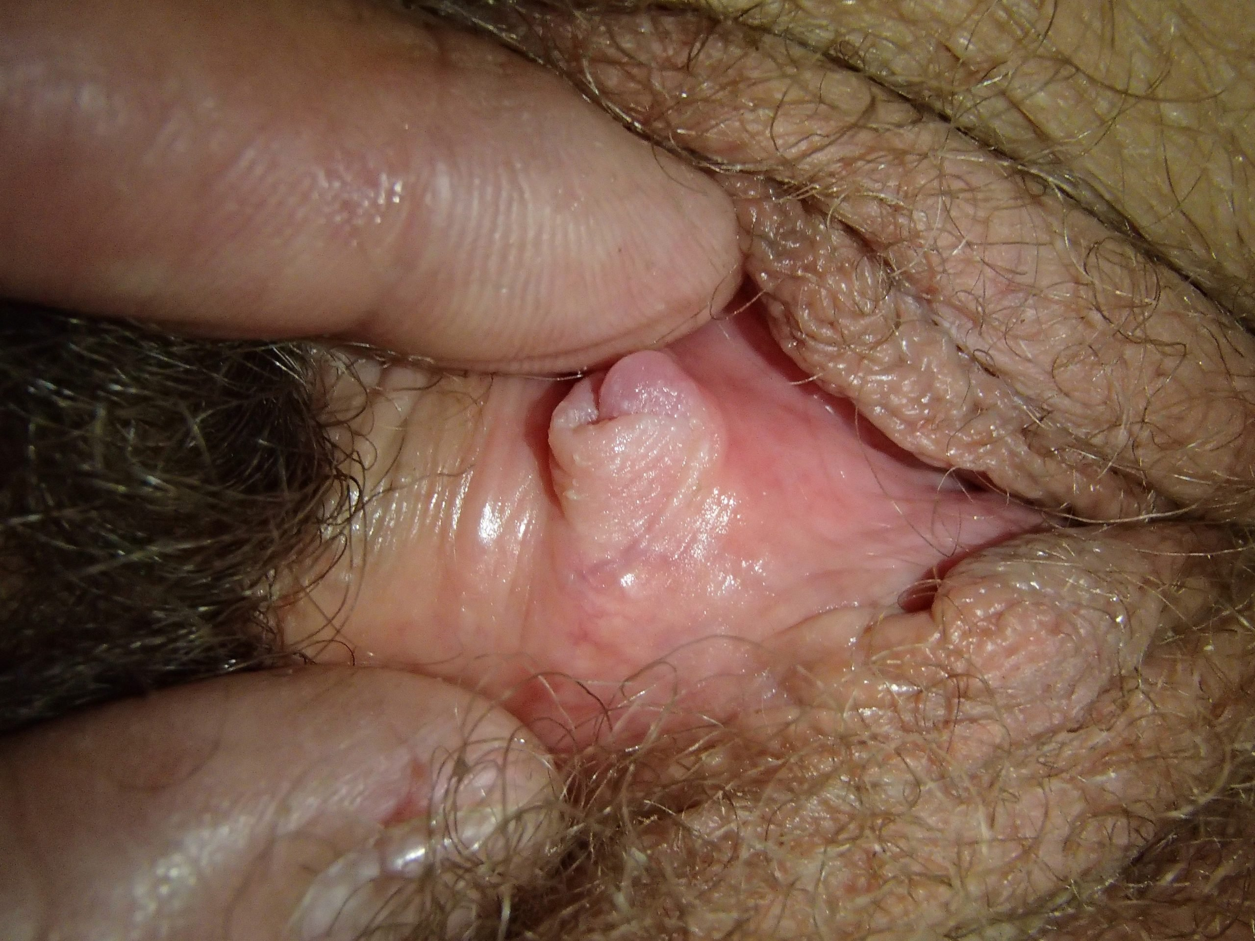 Pic and clit clitoris @