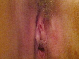 hairy-pussy-patch