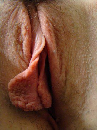 huge-labia