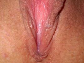 open-vagina-mountain