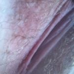 vulva lips close up
