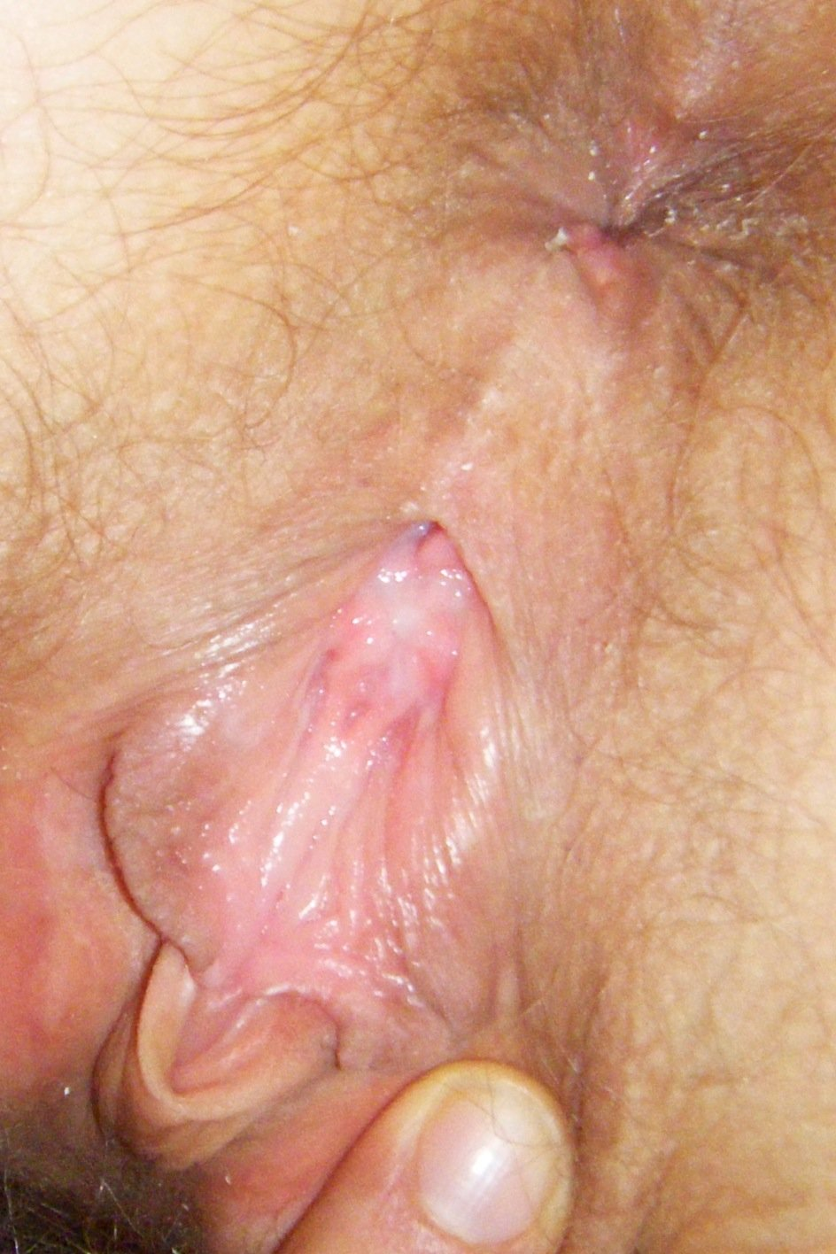 from Trevor picture hole vagina close up