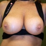 Woman with Moles Shows Tits